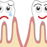 tooth decay and tooth cavity