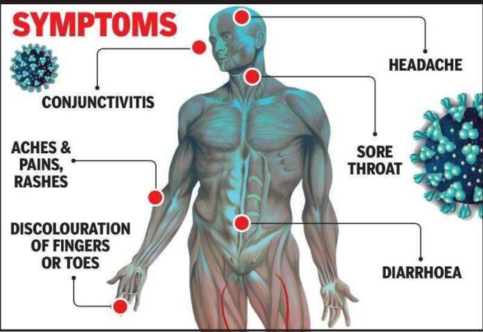 Symptoms for Coronavirus